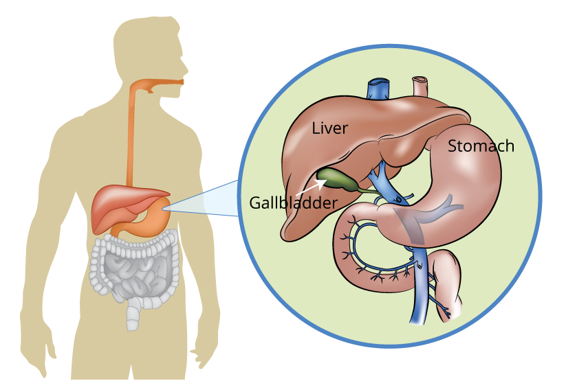 Liver Pancreas And Gallbladder Conditions What Are They